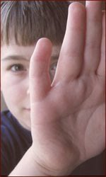 Does a curved pinky (clinodactyly) equal Autism?